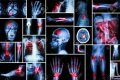 Tutti i dolori del tuo corpo potrebbero essere collegati allo stato emotivo.